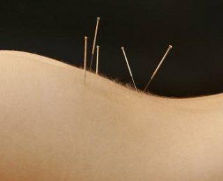 Comment se soulager avec l'acupuncture !